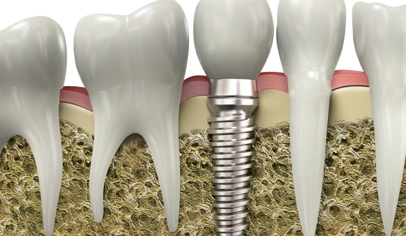 implantes-dentales-alaia