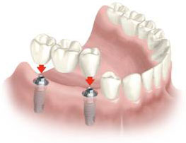 protesis fija atornillada sobre implantes