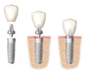 procedimiento-implante-dental
