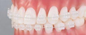 brackets-ceramicos-ortodoncia