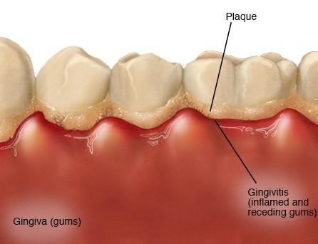 La gingivitis es pr...
