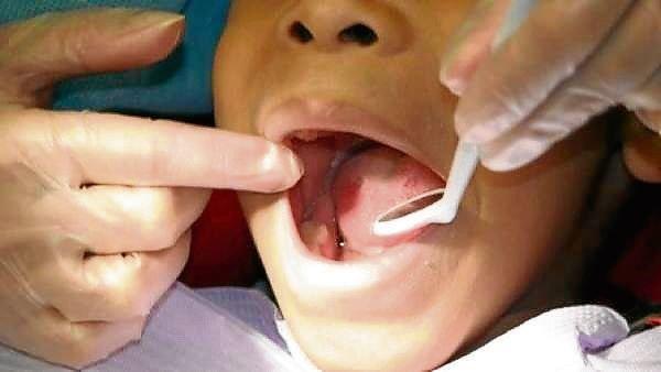 Salud oral en niño...