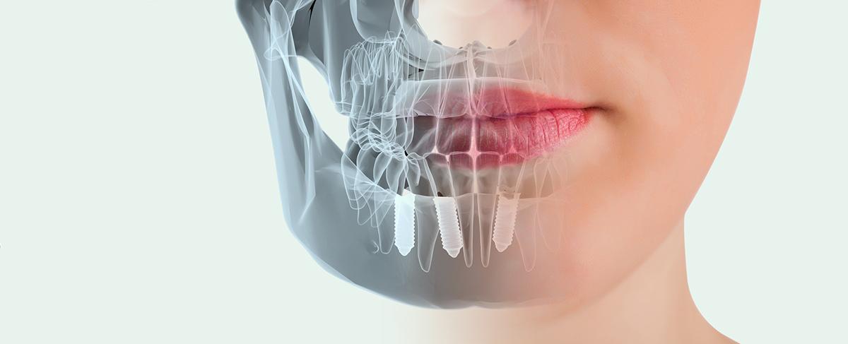 Image result for implantes dentales
